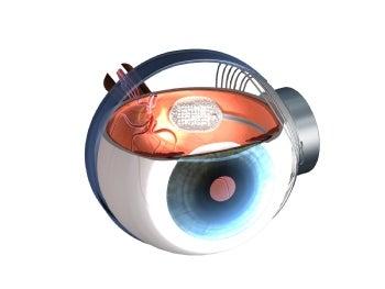 Argus Eye