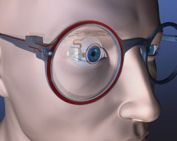 Boston Retinal Implant