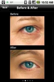Eye Brightener app